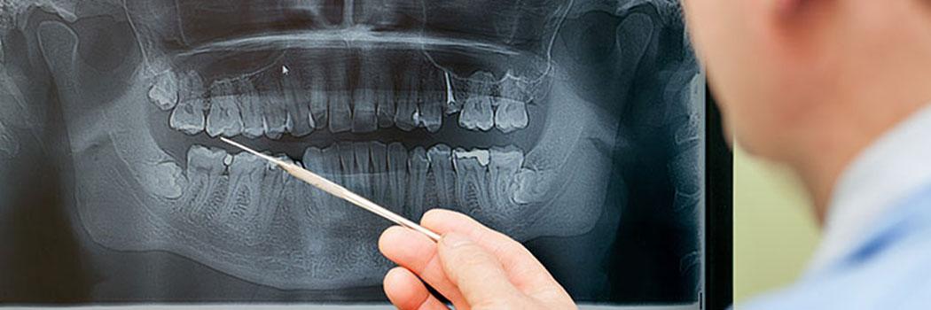 radiografia digitale centro diagnostico theo